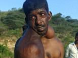 Palanisami, 42, lives inTamil Nadu, India, where doctors cannot diagnose his illness