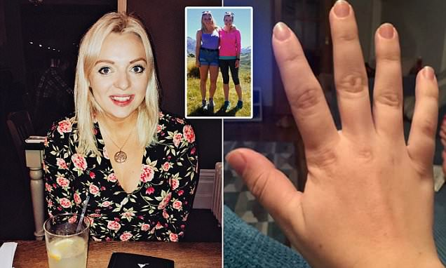 Midwife reveals how her hands and feet wouldn't stop growing – because of a brain tumour