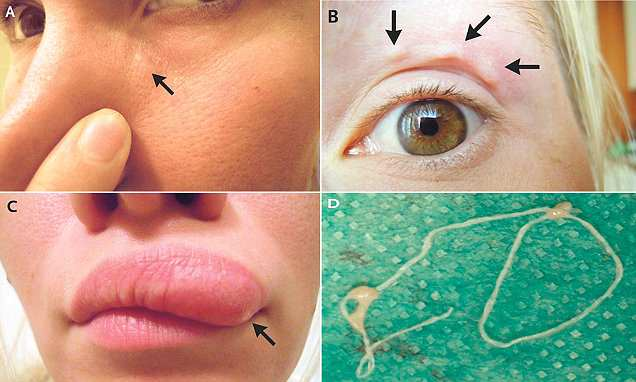 Mysterious itchy lump on woman's face is a parasitic worm