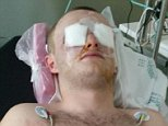 Dillon Connery, 18, in hospital after he had his eyes 'split in two' at a UV paint party in Magaluf
