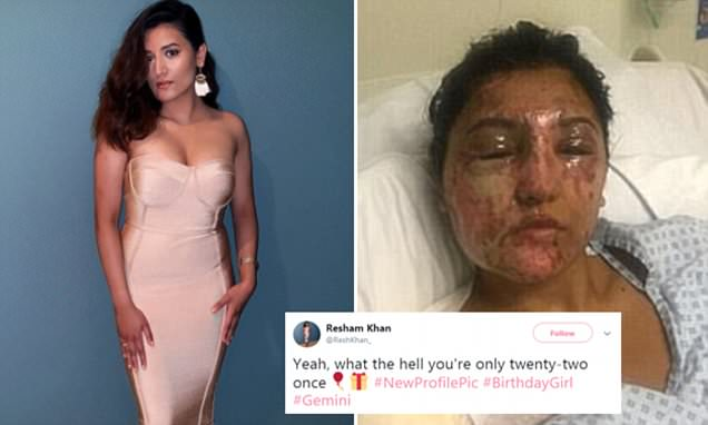 London model whose 'face was melted' in acid attack on her 21st birthday shares birthday