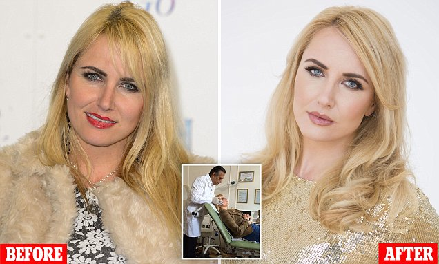 Is the 'grow your own' facelift the new anti-ageing saviour? Nancy Sorrell, 40, tries out