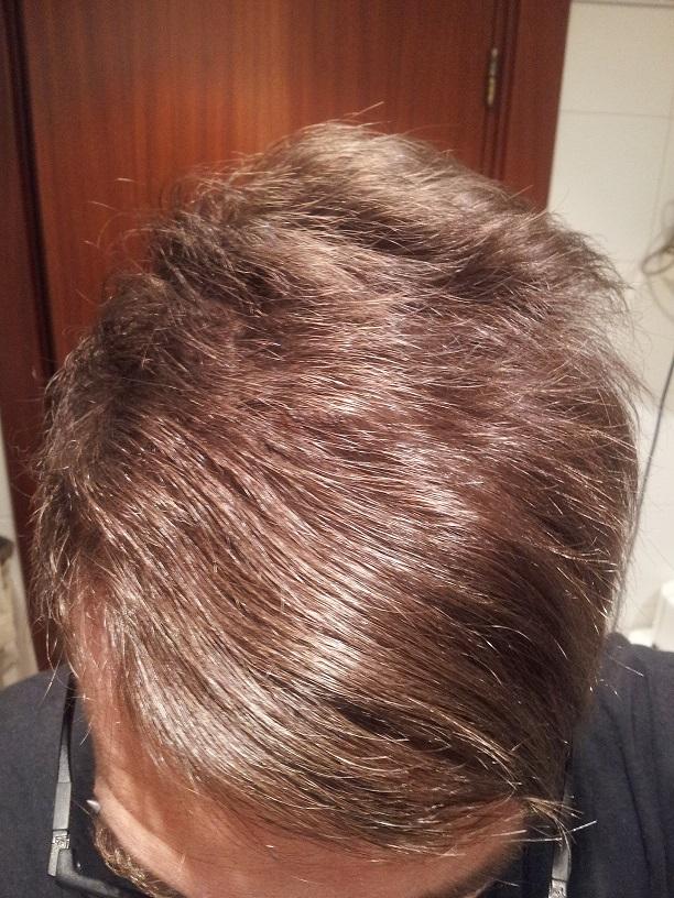 oculta la alopecia