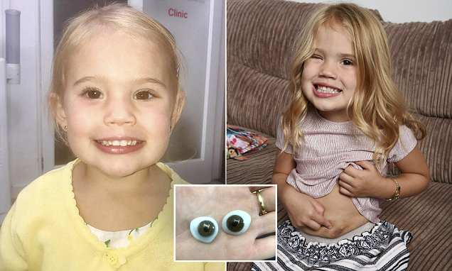 UK girl born without an eye has one created from her own STOMACH FAT
