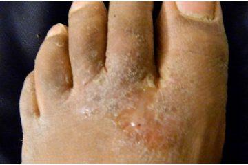 Athlete's Foot Corns & Calluses - Spiritual Meaning, Causes, Symptoms
