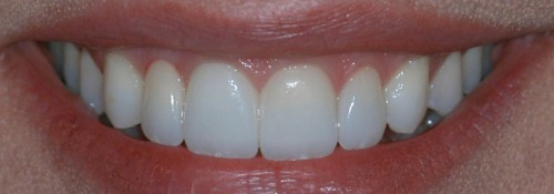 Cases In Implant Dentistry