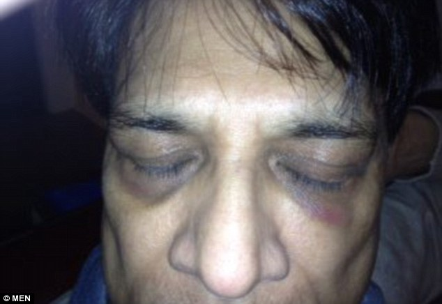 Attack: Prakash Patel, 56, was racially abused then punched in the face repeatedly while on a tram in Manchester with his daughter