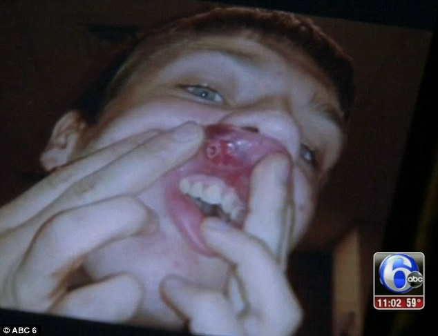 Painful: Dylan Fonner's face is cut up from the alleged attack he experienced on the way home from school last Wednesday in Chester, Penn