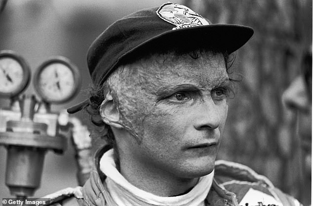 Austrian Grand Prix racing car driver Niki Lauda watches on in the late 1970s. Lauda was badly burned in a crash during the 1976 season but returned to race shortly afterward