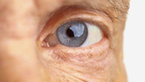 Perda da visão e cegueira: tire suas dúvidas