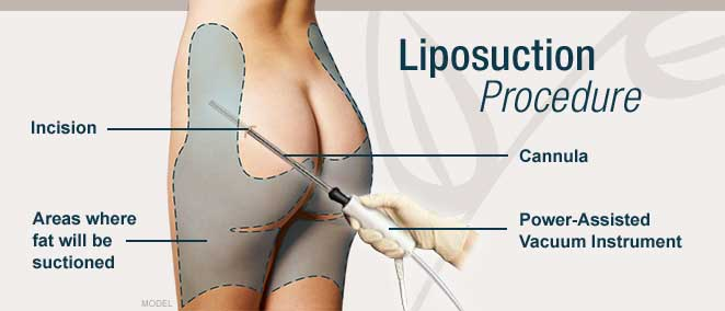 Does Liposuction Really Work