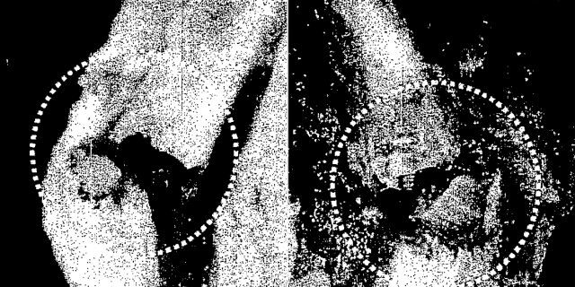 A microscopic view of two fractures (circled) on the let and right sides of Jeffrey Epstein's thyroid. (New York City Medical Examiner's Office)