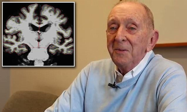 Donald Tenbrunsel aged 89 has brain of a 25-year-old
