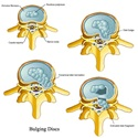 Cervical Bulging Disc