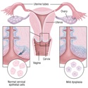 Cervical Cancer: Symptoms, Treatment and Prevention