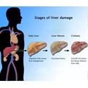 Symptoms of Cirrhosis of the Liver