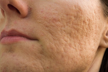 close-up of woman with acne scars on her cheek and chin