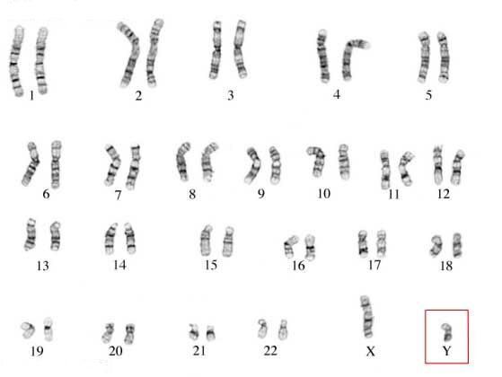 The 46 chromosomes are paired by size.  The set of arranged chromosomes is called a karyotype.  Each chromosome pair is identified by a number.  We have two copies of each chromosome.  There are also 2 different sex chromosomes, the X and Y chromosomes (bottom right).  This figure shows the karyotype of a man.