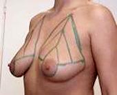 breast uplift scarless