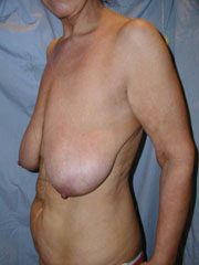 Before breast uplift