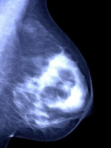 one-time-radiation-effective-breast-cancer