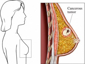 Information On Breast Cancer Types!