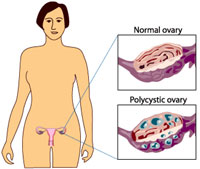 Polycystic Ovary Syndrome. Symptoms, Treatment, Causes