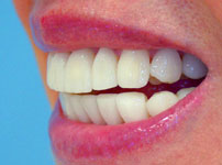 Porcelain veneers after photo (picture) 10