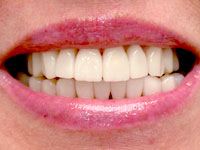 Porcelain veneers after photo (picture) 4