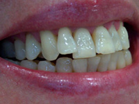 Porcelain veneers before photo (picture) 5