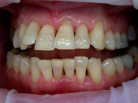 Porcelain veneers before photo (picture) 1