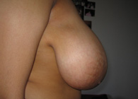 Breast reduction surgery before right view picture - Miss Patel