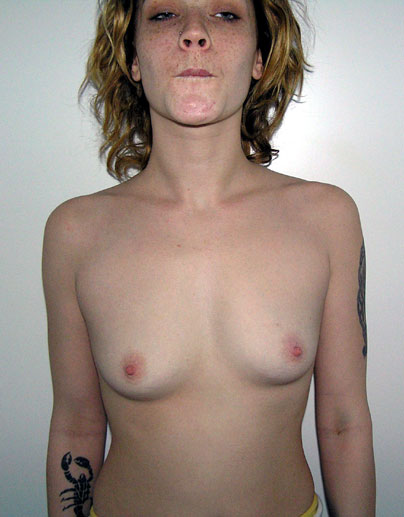 front before breast augmentation - enlargement