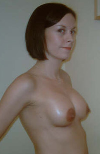 Breast augmentation surgery before front picture - Karen Burns