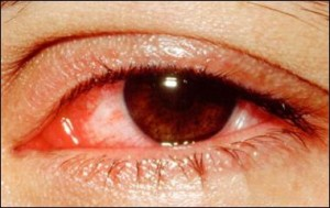 causes of the red eye 300x189 Top 10 causes of the red eye be careful