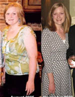 Katie before-after1