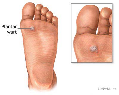 Natural remedies for plantar warts are safer and more effective for getting rid of warts on feet like these.