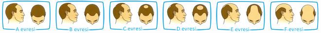 Hamilton saç dökülmesi evreleri