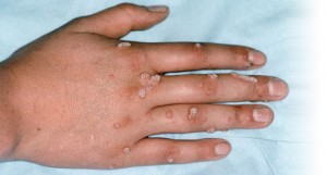 get rid of warts on hands fingers