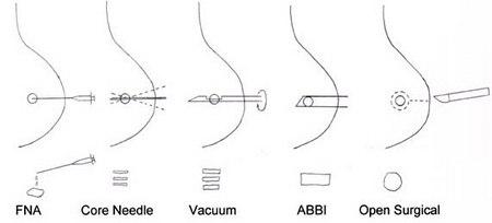 Breast Biospy types