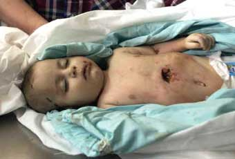 Iman Hijo Age: 4 Months Old, Place of murder: At her grandmother's house in Khan Yunis Refugee Camp, Weapon used: Israeli Tank