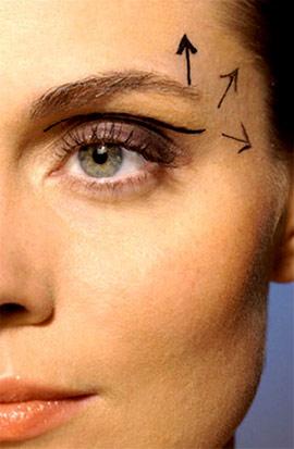 chữa sụp mí mắt như thế nào