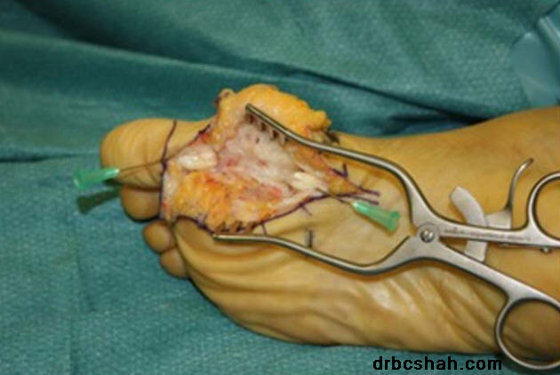 Tendon Repair