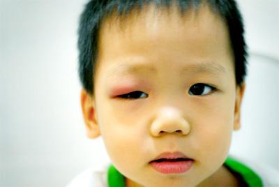 child%2Bstye - Radang Punca Ketumbit
