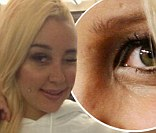 The former star claims she went under the knife to remove 'webbed' skin that was growing between her nose and her eyes.