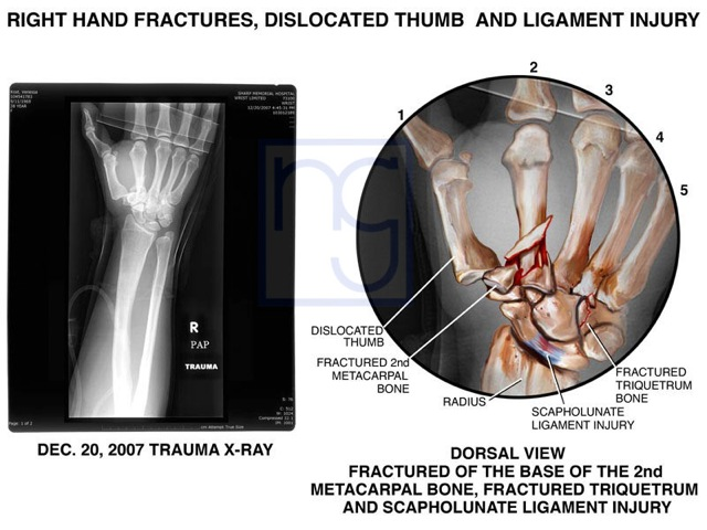San Diego Right Hand Trauma and Fractures Injury Lawyer