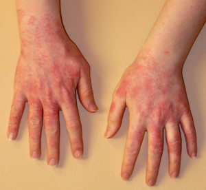 Example of gloves allergy