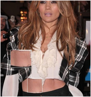 Jennifer Lopez belly stretch marks Magic or Massage   How do celebrities get rid of stretch marks?