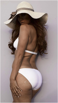 jennifer lopez buttock stretch marks Magic or Massage   How do celebrities get rid of stretch marks?