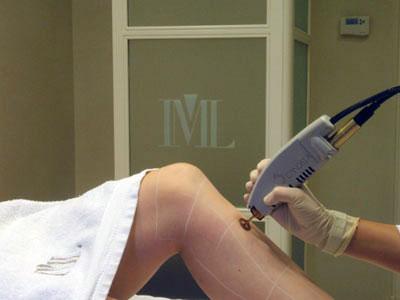 Depilación láser en piernas con láser alejandrita